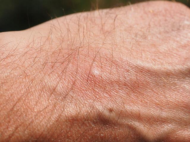 swędzenie skóry wieczorem